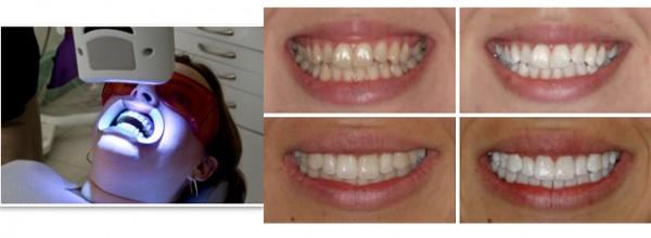 лазерное отбеливание зубов стоимость