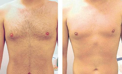 лазерная эпиляция до и после фото