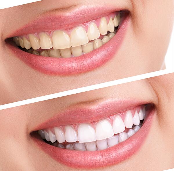 лазерное отбеливание зубов результат