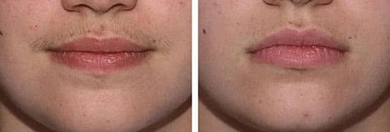 лазерная эпиляция фото до и после